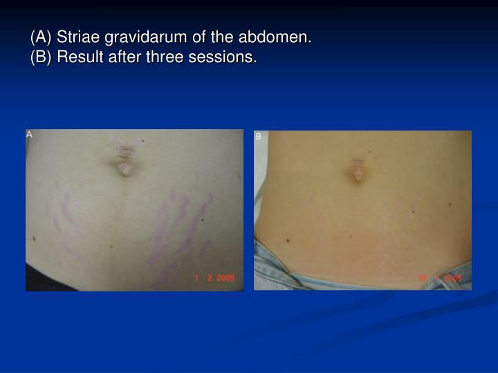 (A) Striae gravidarum of the abdomen.