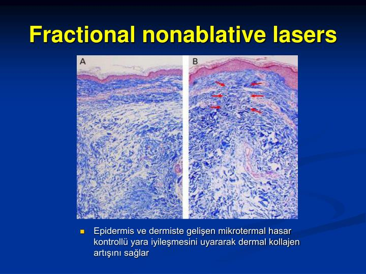 Epidermis ve dermiste gelişen mikrotermal hasar kontrollü yara iyileşmesini uyararak dermal kollajen artışını sağlar