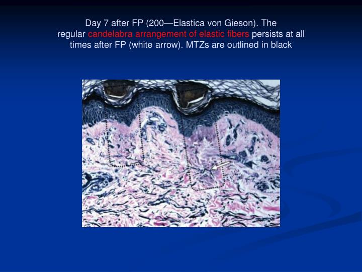 Day 7 after FP (200—Elastica von Gieson). The