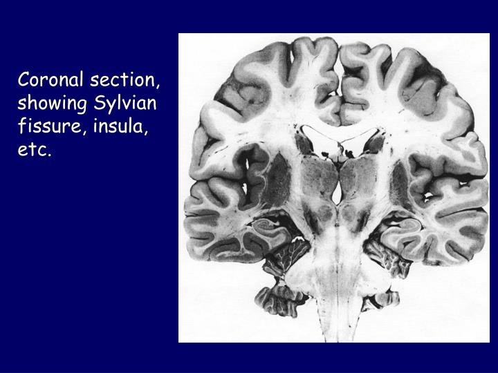 Coronal section, showing Sylvian fissure, insula, etc.