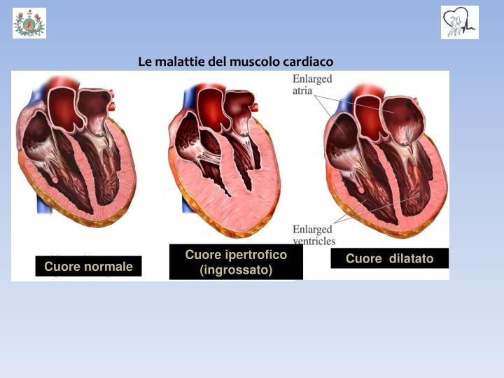 Le malattie del muscolo cardiaco