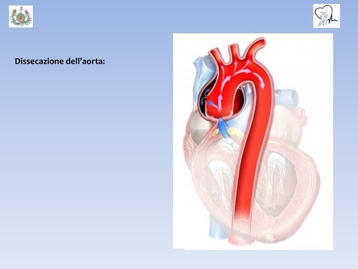 Dissecazione dell'aorta: