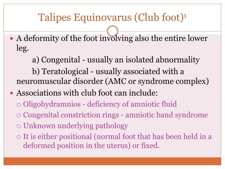 Talipes Equinovarus (Club foot)