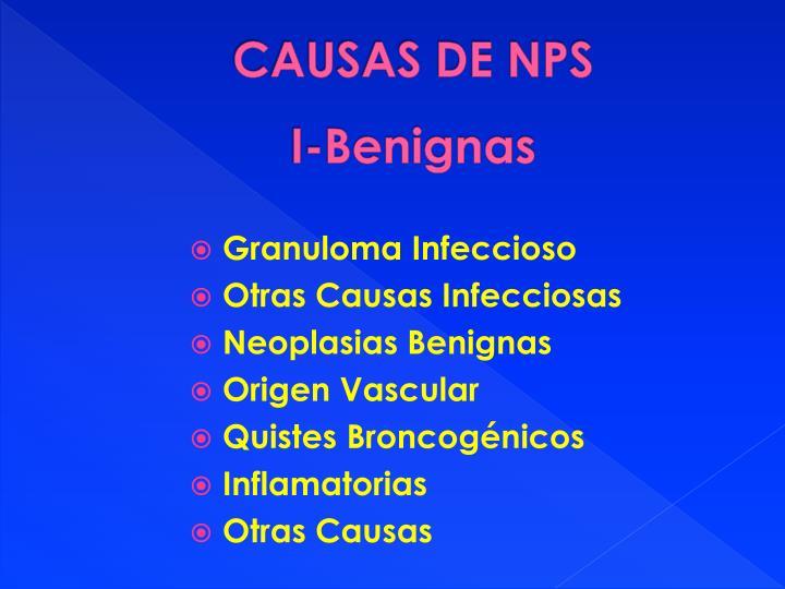Causas de nps i benignas