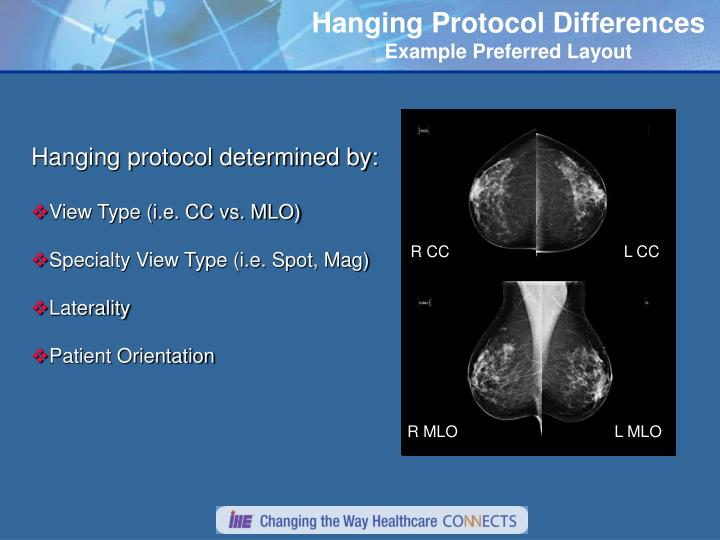 Hanging Protocol Differences