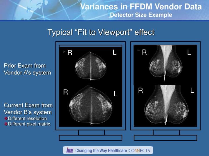 Variances in FFDM Vendor Data
