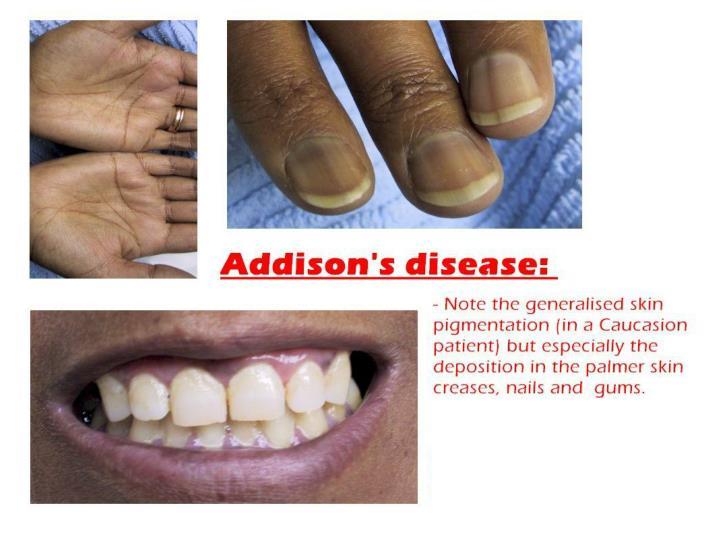 Addison's Disease