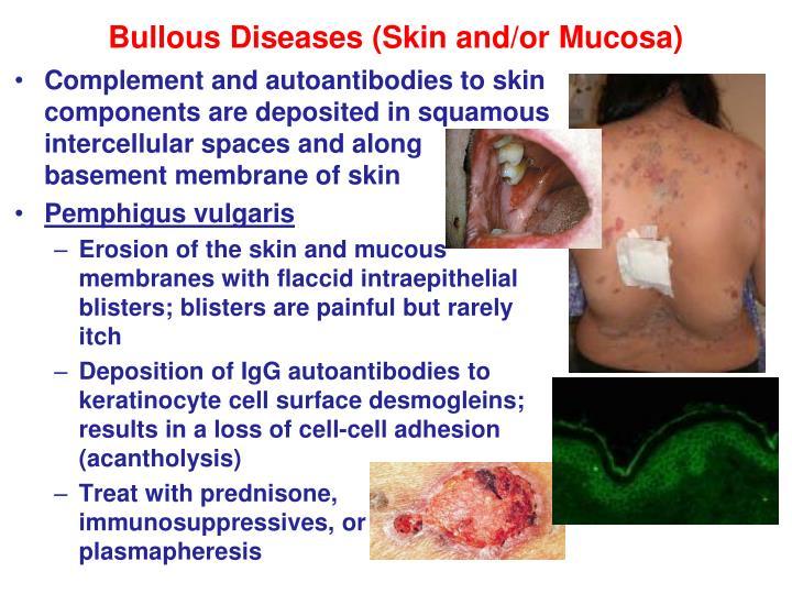 Bullous Diseases (Skin and/or Mucosa)