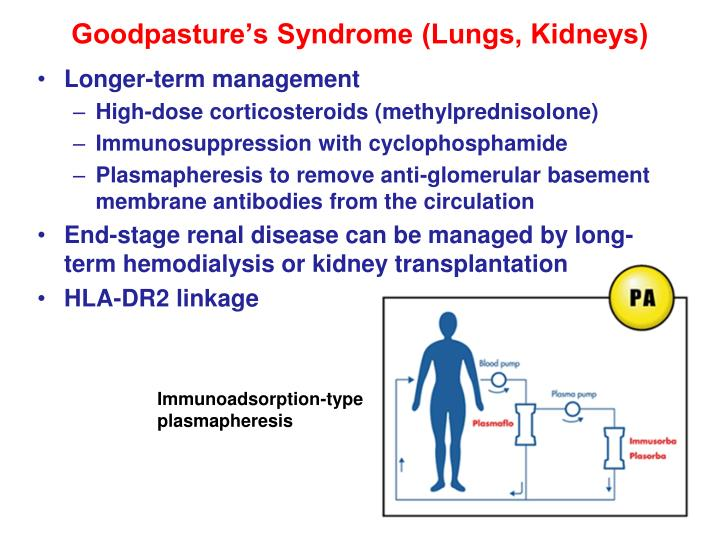 Goodpasture's Syndrome (Lungs, Kidneys)