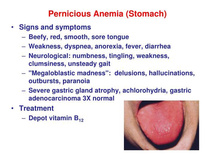 Pernicious Anemia (Stomach)