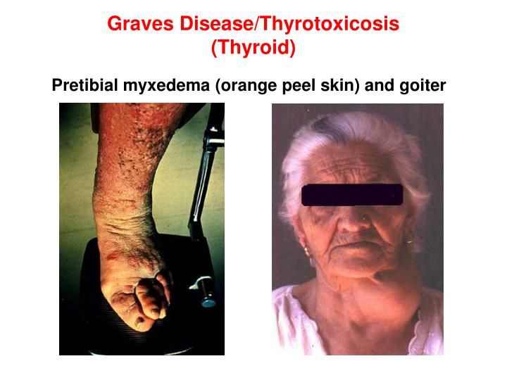 Graves Disease/Thyrotoxicosis