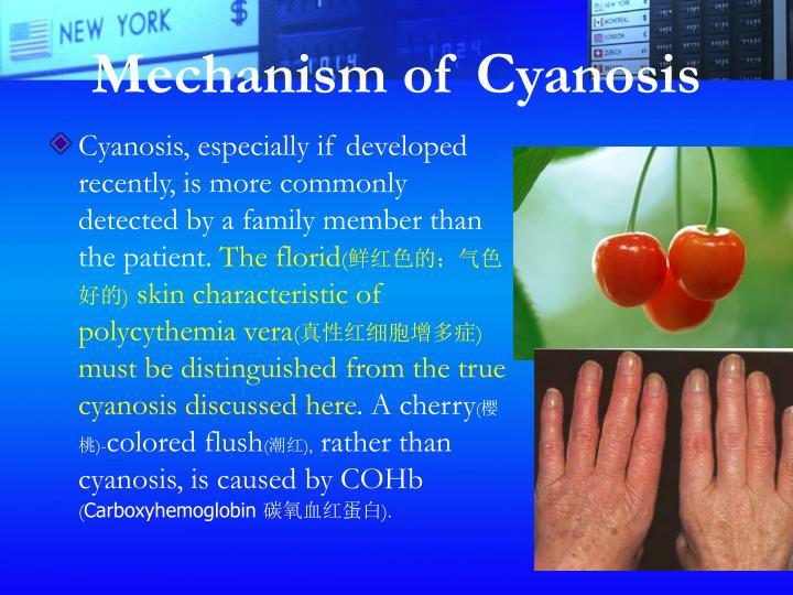 Mechanism of Cyanosis
