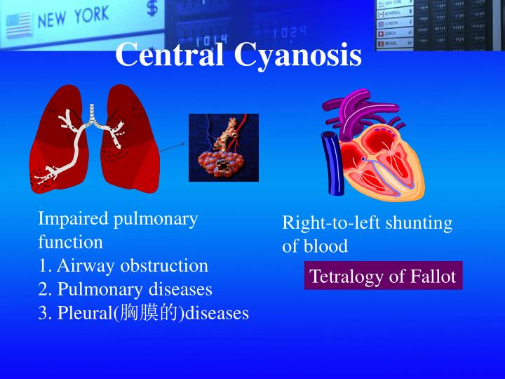 Central Cyanosis