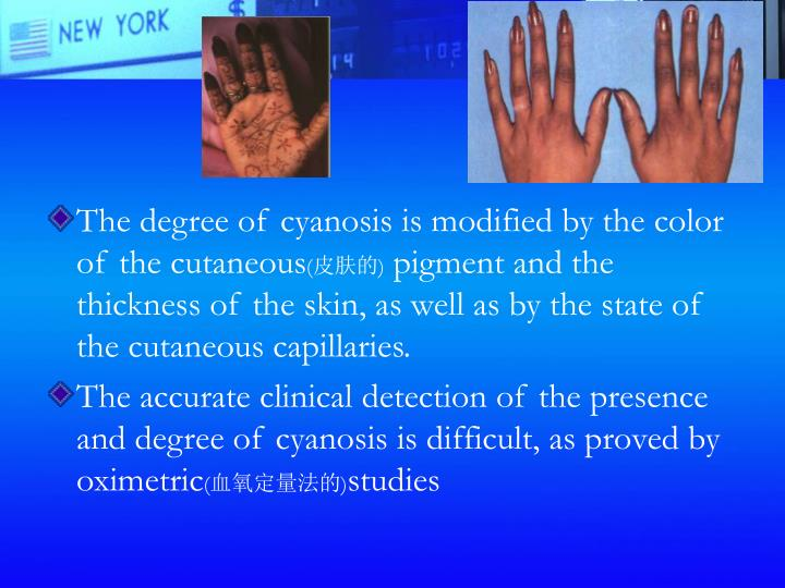 The degree of cyanosis is modified by the color of the cutaneous
