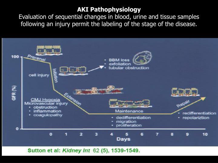 AKI Pathophysiology