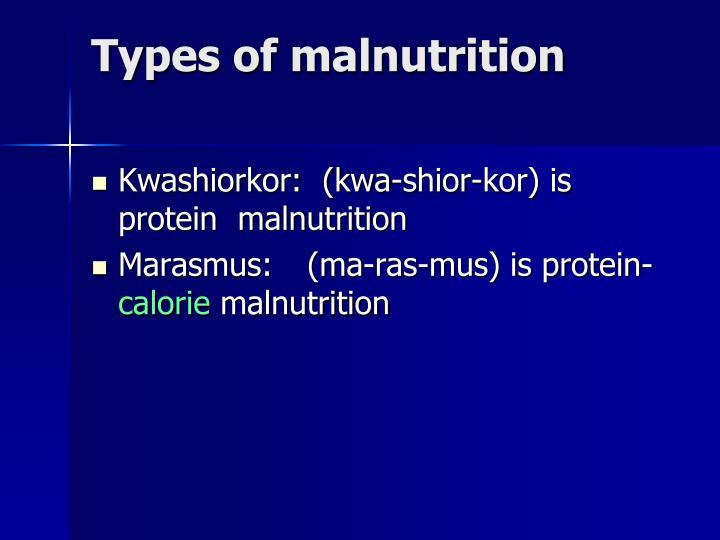 Types of malnutrition
