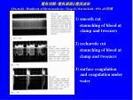 j paetzold handbook of electromedicine chap 12 martin kohl 1976