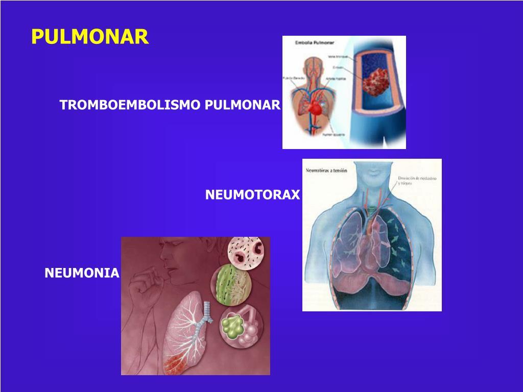 PPT - Insuficiencia coronaria PowerPoint Presentation..