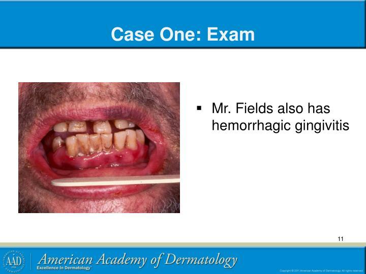 Case One: Exam
