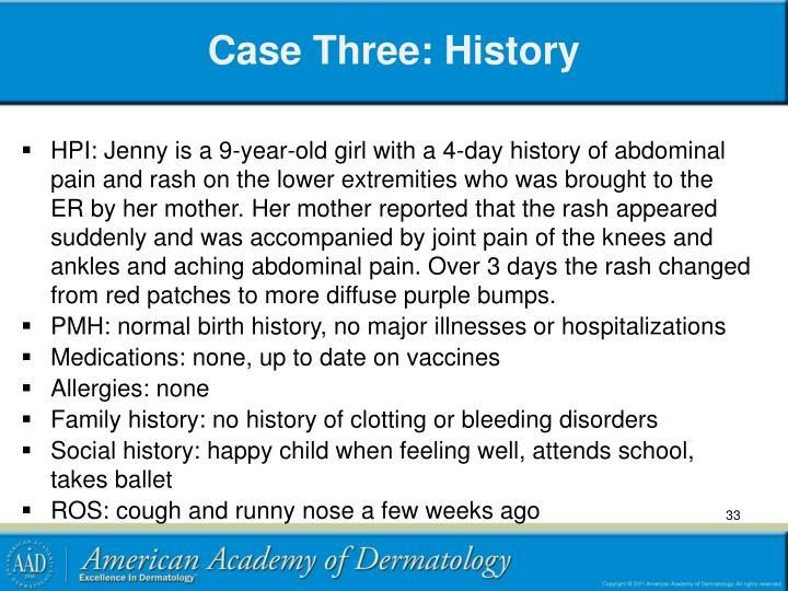 Case Three: History