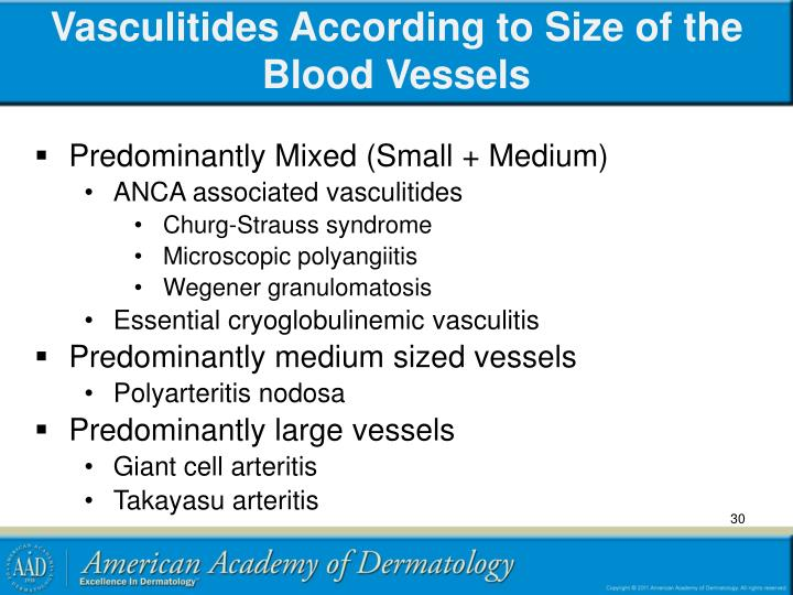 Vasculitides According to Size of the Blood Vessels
