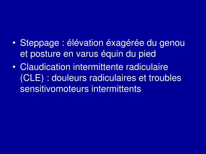 Steppage : élévation éxagérée du genou et posture en varus équin du pied