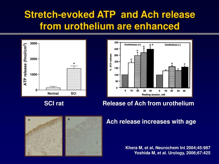Stretch-evoked ATP  and Ach release from