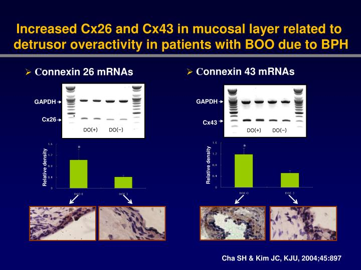 Increased Cx26 and Cx43 in mucosal layer related to