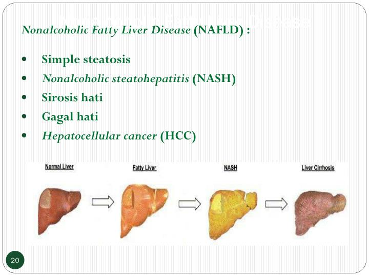Nonalcoholic Fatty Liver Disease