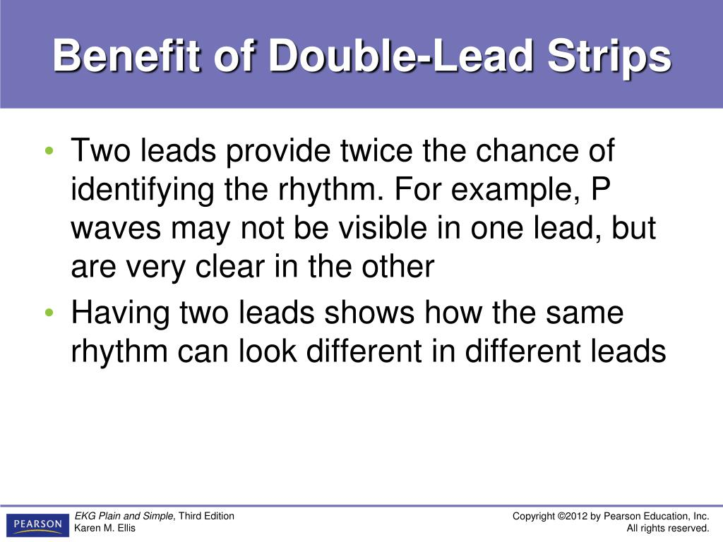 ekg plain and simple from rhythm strips to 12 leads