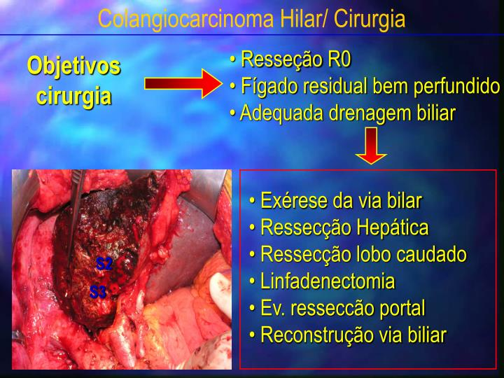 Colangiocarcinoma Hilar/ Cirurgia