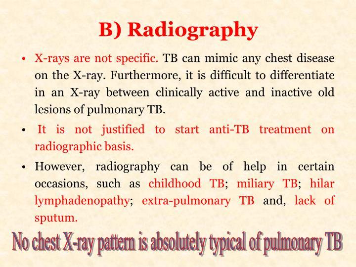 B) Radiography