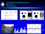 the norwegian radiumhospital mammography micro calcifications fourier transformation