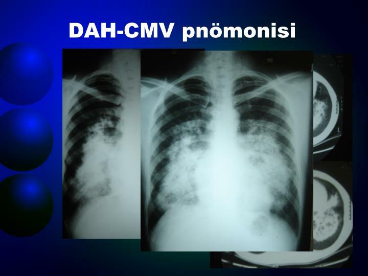 DAH-CMV pnömonisi