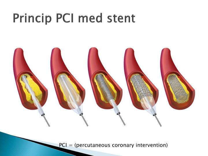 Princip PCI med