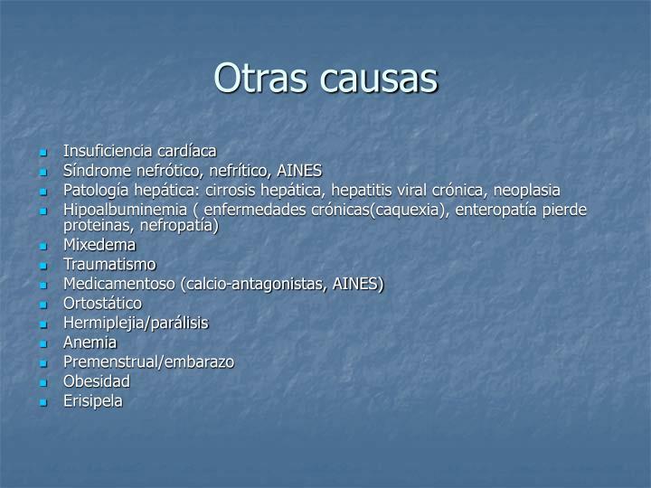 Otras causas