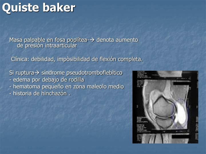 Quiste baker