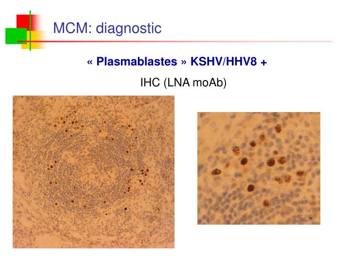 MCM: diagnostic