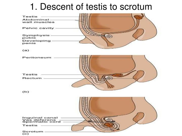 Ppt 1 Descent Of Testis To Scrotum Powerpoint Presentation Id