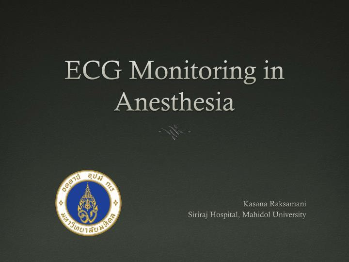 PPT - ECG Monitoring in Anesthesia PowerPoint Presentation