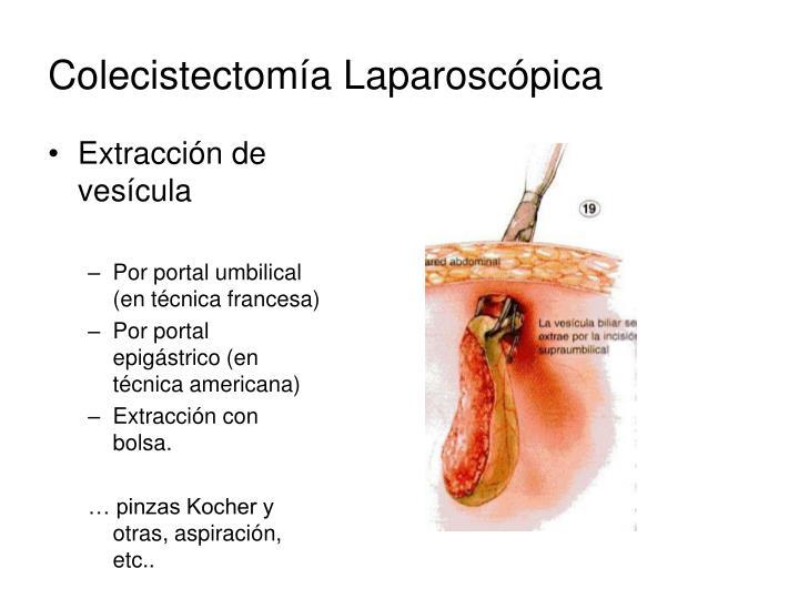 PPT - Colecistectomía Laparoscópica PowerPoint Presentation - ID:3705399