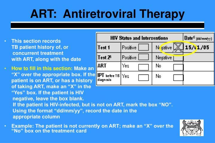 ART:  Antiretroviral Therapy