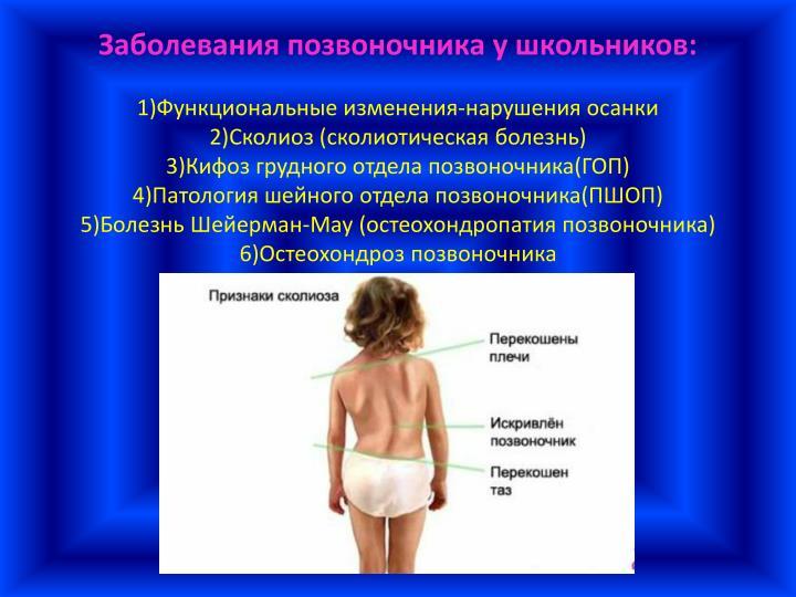 Сколиоз шейно грудного отдела позвоночника