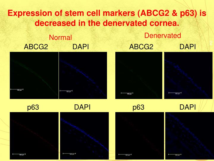 Expression of stem cell markers (ABCG2 & p63) is decreased in the