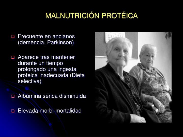 MALNUTRICIÓN PROTÉIC