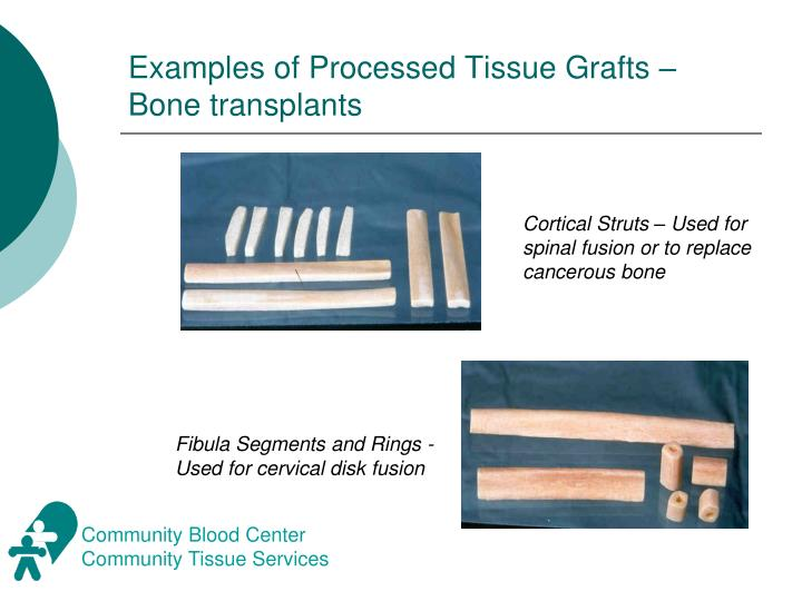 Examples of Processed Tissue Grafts – Bone transplants