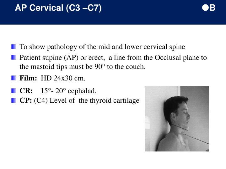 AP Cervical (C3 –C7)