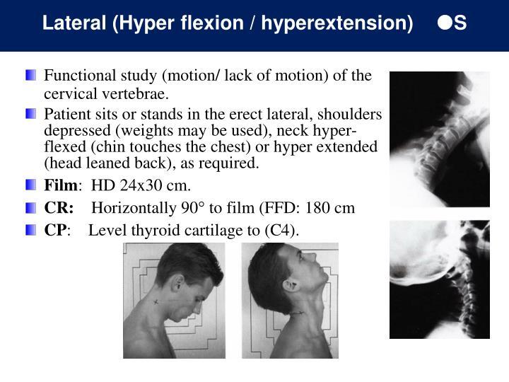 Lateral (Hyper flexion / hyperextension)