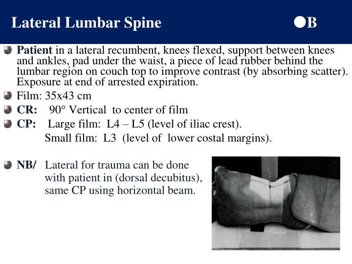 Lateral Lumbar Spine