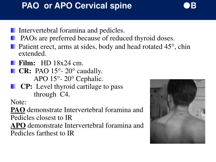 PAO  or APO Cervical spine